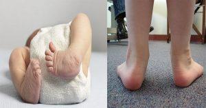 เท้าปุก เท้าแป
