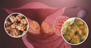 อาหารก่อมะเร็ง